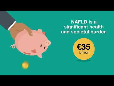 Embedded thumbnail for Obesity and non-alcoholic fatty liver disease (NAFLD)